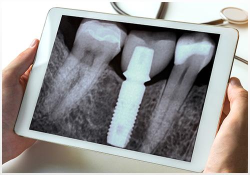 Radiologie Dentaire Radiographie Numérique